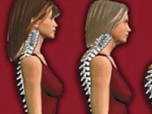 Болните от остеопороза ще протестират пред МЗ