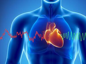 Изкуствен интелект предсказва инфаркт по-точно от лекар